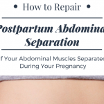 What is the MuTu System? Will it Heal Abdominal Separation?